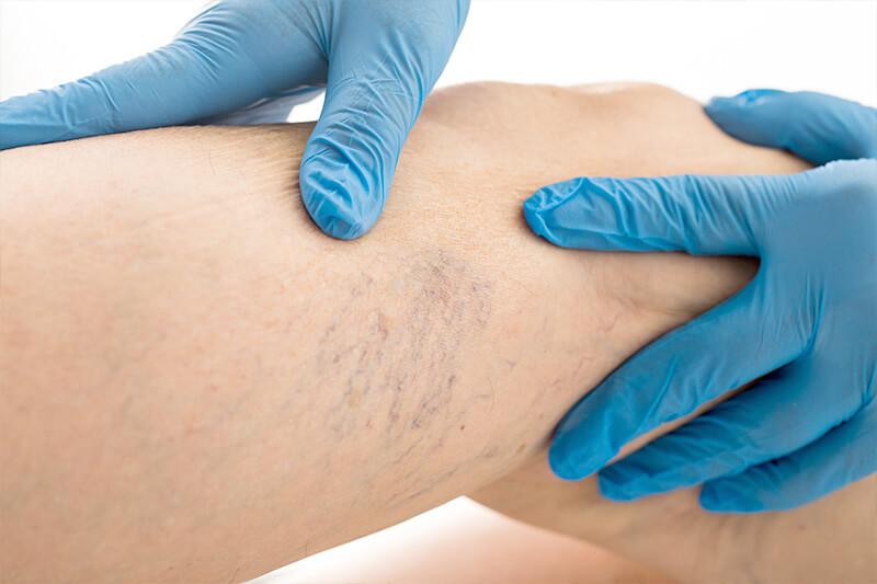varico venele de ștergere hematoame după o intervenție chirurgicală
