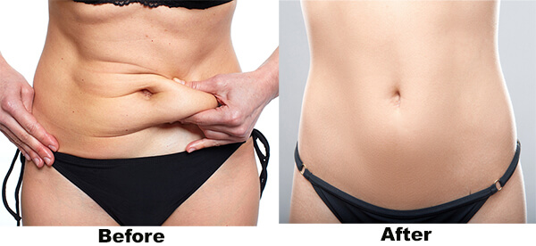 abdominoplastie-liposuctie