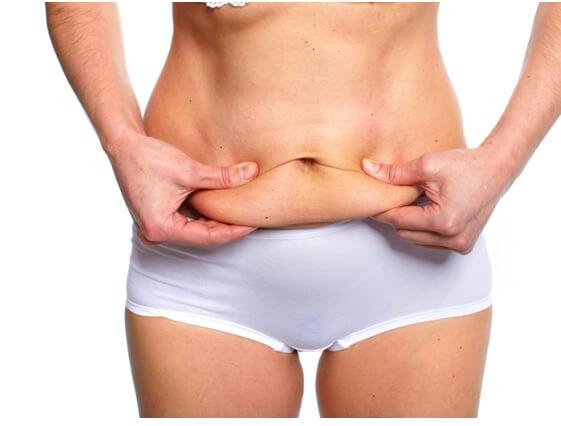 abdominoplastie1