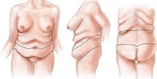 chirurgie-postbariatrica-pret