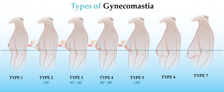Ginecomastie