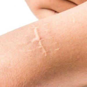 Corectia cicatricilor