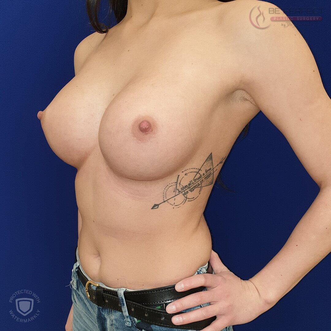Implant mamar
