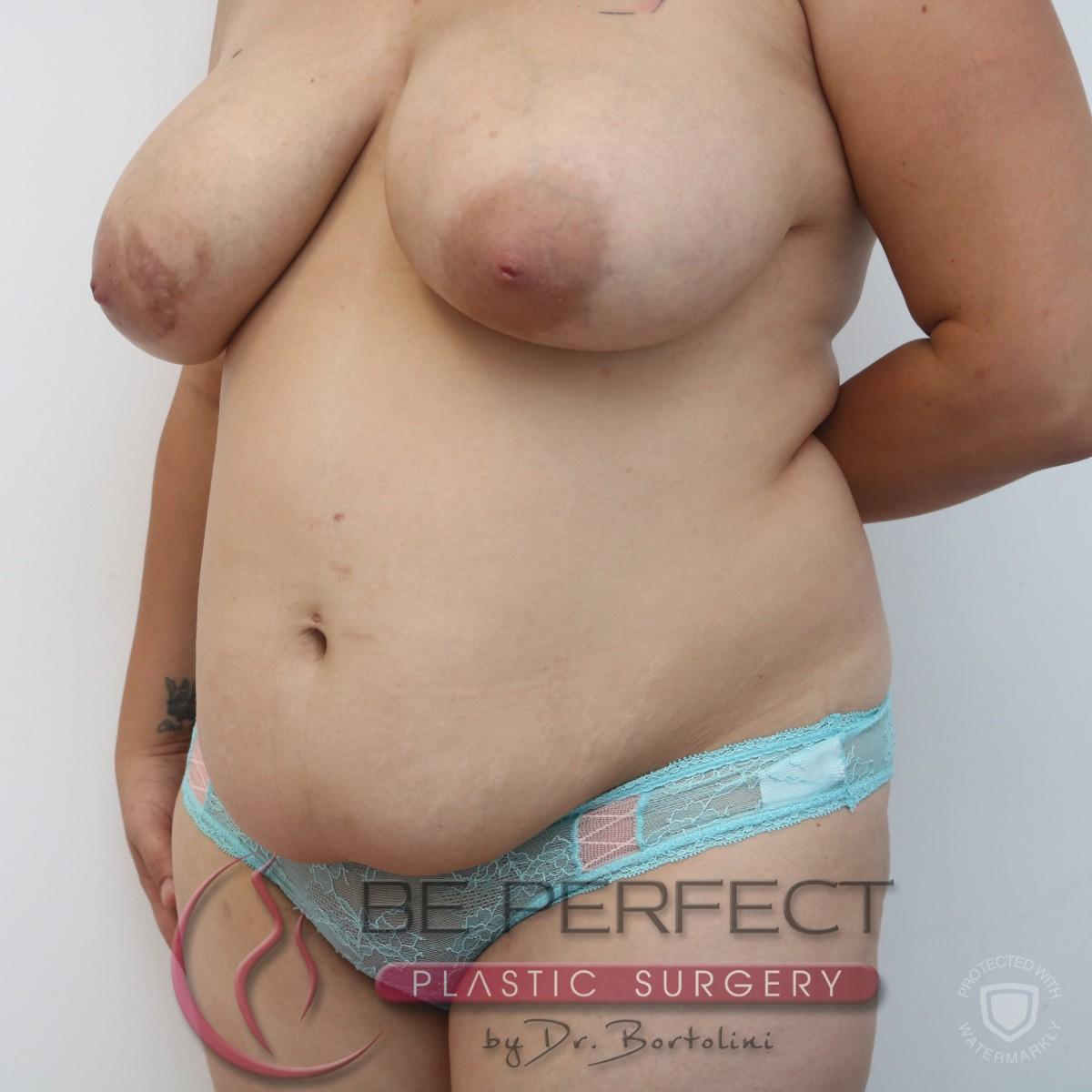 Abdominoplastie
