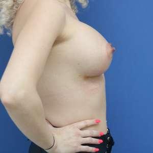 Totul despre asezarea implanturilor mamare Implant mamar