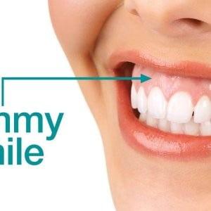 Corectarea zâmbetului gingival Toxulina botulinica Proceduri non-invazive