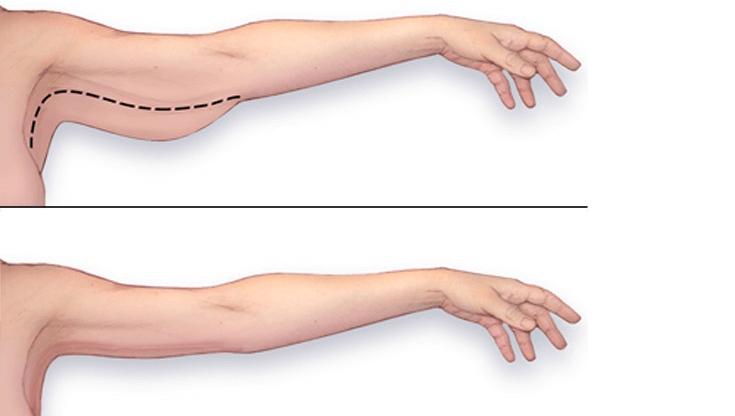 Chirurgia estetică a brațelor - brahioplastie Utile